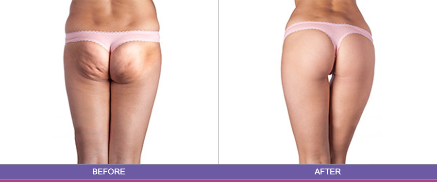 Laser Hair Removal | Toronto Cosmetic Clinic