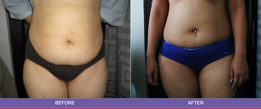 Find liposuction surgery clinic India - Cosmetic lipoplasty