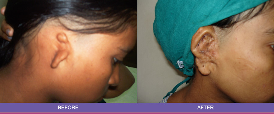 Ahmedabad clinic for ear flap surgery in India - Expert