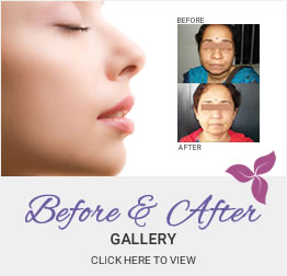 Before & After Photo Gallery